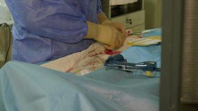 Il cardiologo di medico inserisce un catetere speciale per ambulatorio cardiaco archivi video