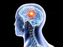 il cervello umano e un tumore illustrazione vettoriale