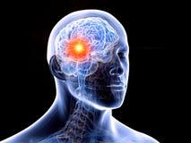 il cervello umano e un tumore illustrazione di stock