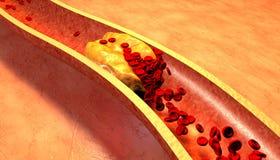 Il colesterolo ha bloccato l'arteria, concetto medico Immagine Stock
