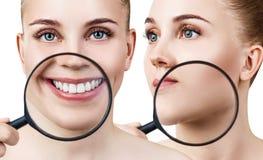 Il collage della donna con la lente d'ingrandimento mostra i denti e la pelle Immagine Stock