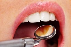 Il dentista Immagini Stock