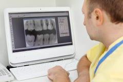 Il dentista esamina i raggi X dei denti il video del calcolatore Fotografie Stock