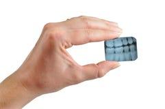 Il dentista femminile tiene i raggi X Fotografia Stock