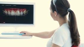 Il dentista mostra al paziente un'istantanea dei suoi denti stock footage