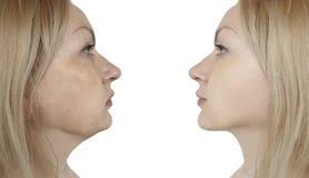 Il doppio mento femminile prima e dopo le procedure del collage risulta correzione fotografia stock libera da diritti