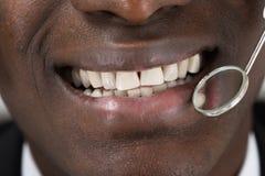 Il dottore Doing Dental Check su del paziente fotografie stock libere da diritti