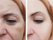 Il fronte della donna corruga la rimozione invecchiante di terapia della pigmentazione prima e dopo le procedure fotografia stock