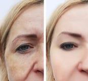 Il fronte della donna corruga la rimozione invecchiante della pigmentazione prima e dopo le procedure immagine stock