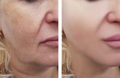 Il fronte della donna corruga la rimozione della pigmentazione prima e dopo le procedure immagini stock libere da diritti