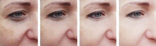 Il fronte della donna corruga il paziente di correzione prima e dopo ringiovanimento del trattamento di cosmetologia fotografia stock
