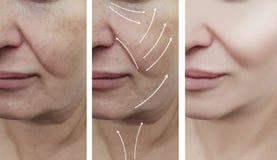 Il fronte della donna corruga il ringiovanimento paziente del gonfiamento della pelle prima e dopo le procedure di cosmetologia d fotografia stock