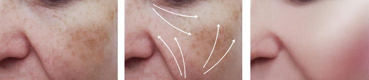 Il fronte della donna corruga il ringiovanimento paziente dell'estetista di terapia della pelle prima e dopo le procedure di cosm fotografie stock
