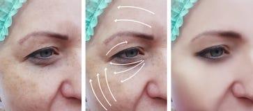 il fronte della donna corruga il ringiovanimento paziente dell'estetista di terapia prima e dopo le procedure di cosmetologia di  fotografia stock