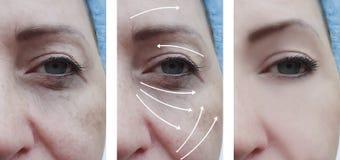 Il fronte della donna corruga il ringiovanimento paziente di terapia della pelle prima e dopo le procedure di cosmetologia di cor fotografia stock