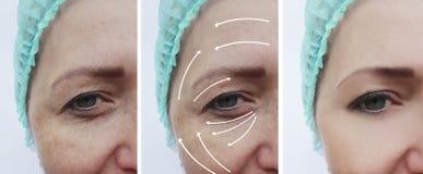 Il fronte della donna corruga il ringiovanimento paziente della pelle prima e dopo le procedure di cosmetologia di correzione immagini stock libere da diritti