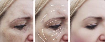 Il fronte della donna corruga il ringiovanimento paziente della pigmentazione del gonfiamento della pelle prima e dopo le procedu fotografie stock