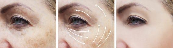 Il fronte della donna corruga il ringiovanimento paziente della sbucciatura della pelle prima e dopo le procedure di cosmetologia immagine stock