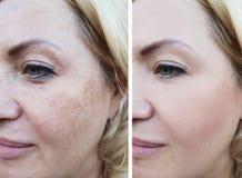 Il fronte della ragazza si corruga prima e dopo, la pigmentazione di sollevamento del cosmetico di correzione fotografia stock