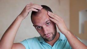 Il giovane caucasico controlla la perdita di capelli archivi video