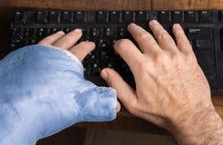Il giovane con il braccio ha fuso la battitura a macchina su una tastiera Immagini Stock