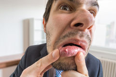 Il giovane sta considerando l'ulcera o la bolla nella sua bocca in specchio immagine stock