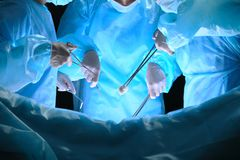 Il gruppo di chirurghi sul lavoro nella sala operatoria ha tonificato in blu Immagine Stock Libera da Diritti