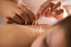 Il medico attacca gli aghi nel corpo del ` s della ragazza sull'agopuntura immagine stock libera da diritti