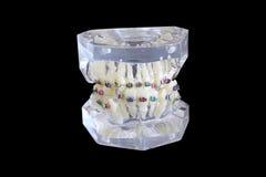 Il modello della mandibola umana con cavo rinforza il attacheg isolato su fondo nero con il percorso di ritaglio fotografia stock