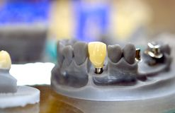 Il modello pieghevole della mandibola con i denti ed i fori per l'impianto incoronano l'appoggio stampato su una stampante 3d Fotografia Stock