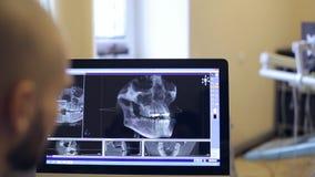 Il paziente e medico discutono il modello di visualizzazione 3D stock footage