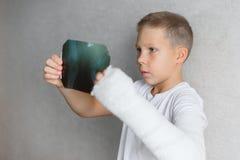 Il ragazzo con una mano rotta esamina i raggi x Raggi x nelle mani di un ragazzo triste con un braccio rotto Fotografie Stock Libere da Diritti