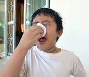 Il ragazzo dell'Asia ha ottenuto l'allergia della polvere Fotografia Stock