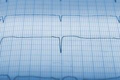 Il registro di attività sismica allinea il primo piano Immagine Stock
