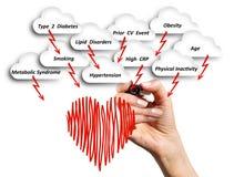 Il rischio di malattia cardiovascolare Fotografie Stock Libere da Diritti