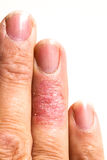 Ill Dematitis Allergic Skin Rash Eczema Finger. Eczema dermatitis allergic skin rash closup region on adult finger. Isolated white background Stock Photography