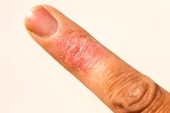 Ill Dematitis Allergic Skin Rash Eczema Finger. Eczema dermatitis allergic skin rash closup region on adult finger. Isolated white background stock images