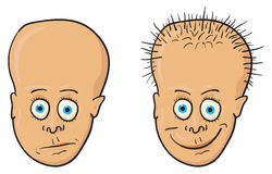 Illustratie - patiënt met een kaal hoofd en een haar vector illustratie