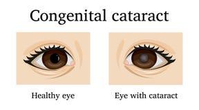 Illustratie van Aangeboren cataract Royalty-vrije Stock Foto's