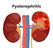 Illustratie van accutepyelonephritis met de etters binnen de nier en de strenge ontsteking Royalty-vrije Stock Afbeeldingen