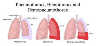 Illustratie van Pneumothorax, Hemothorax en Hemopneumothorax royalty-vrije stock foto's