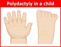 Illustratie van Polydactyly in een kind Stock Fotografie