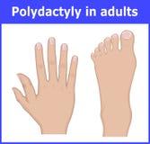 Illustratie van Polydactyly in volwassenen Stock Afbeeldingen