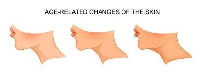 Illustratie van van de leeftijd afhankelijke huidveranderingen aging vector illustratie