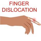 Illustratio medico umano di vettore dell'organo di dislocazione del dito Fotografie Stock Libere da Diritti