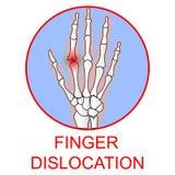 Illustratio medico umano di vettore dell'organo di dislocazione del dito Fotografia Stock Libera da Diritti