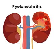 Illustration of the accute pyelonephritis with the pus inside the kidney and severe inflammation royalty free stock images