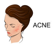 Illustration of acne. The young womans face with acne Royalty Free Stock Photography