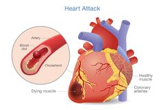 Illustration of Arterial thrombosis is a blood clot that develops to heart attack. Causes and risk factors for health problem Vector Illustration
