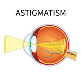 Illustration of astigmatism. Royalty Free Stock Images